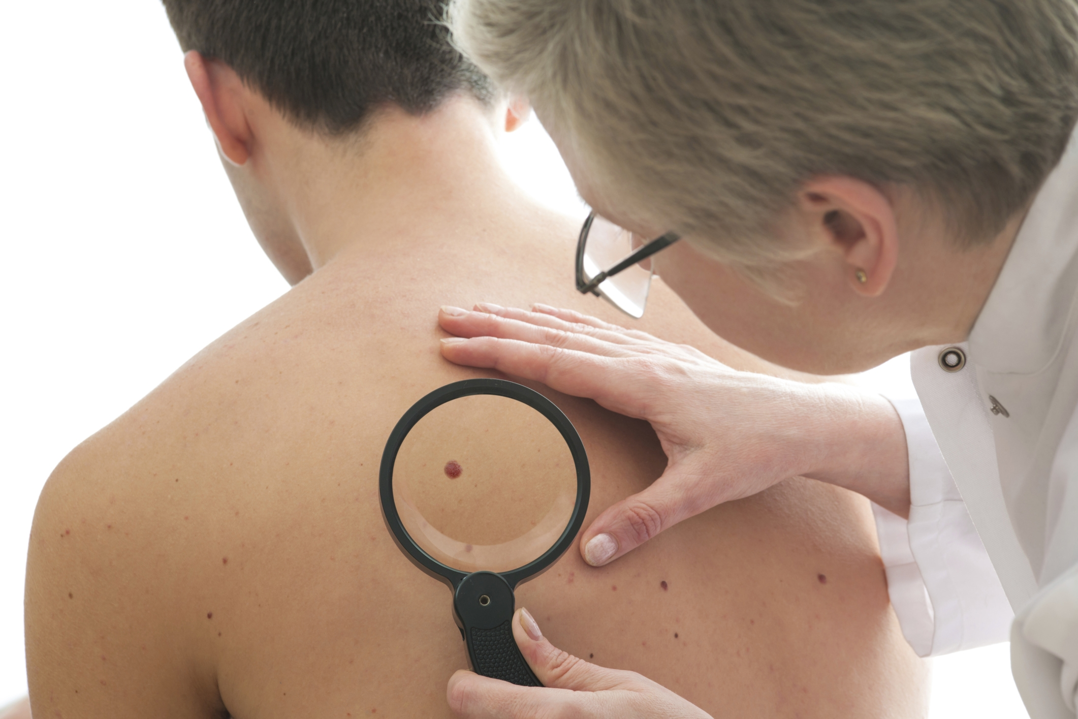 Skin cancer cases in Hampshire have doubled